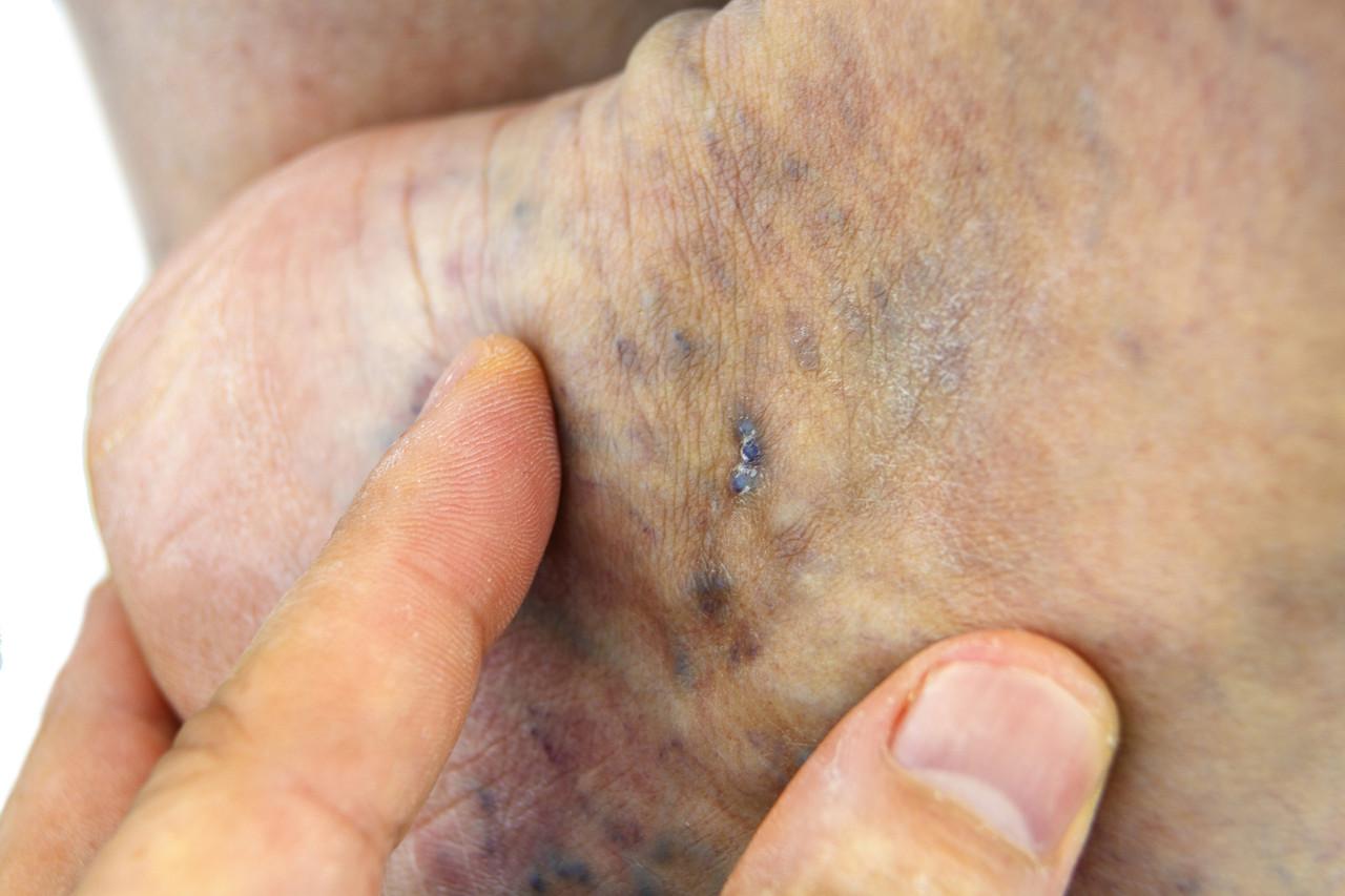 Dark Brown Spots on Legs - Vein Specialists