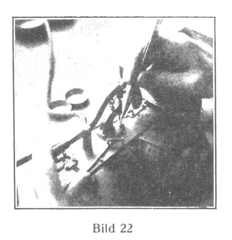 Bild 22: Die Hebungssteine werden in die Ankerfräsungen eingesetzt.