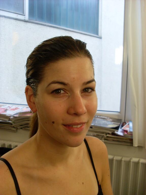 1. vor der Glatzenpräparation