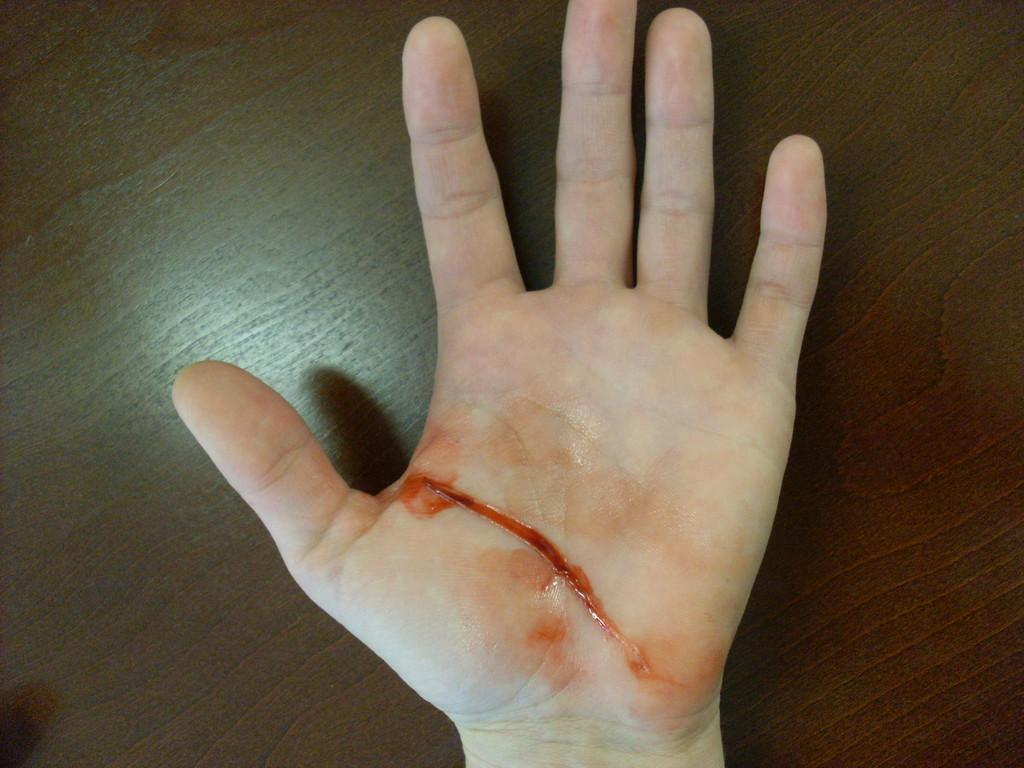 Schnittverletzung