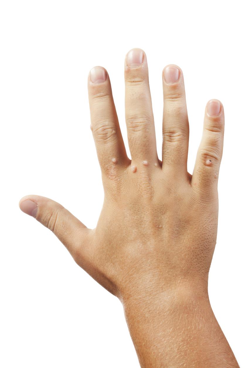 Warzen Hände