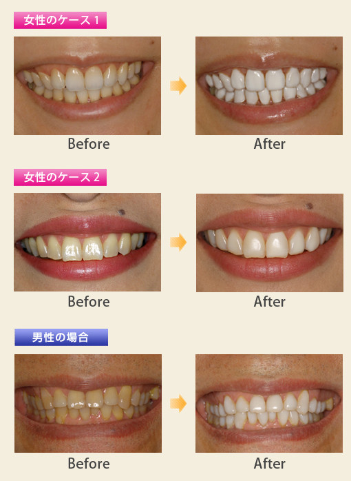 ホワイトコート 佐賀 歯科