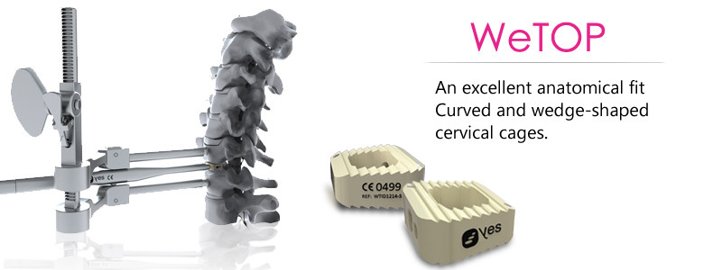 Cervical Cages