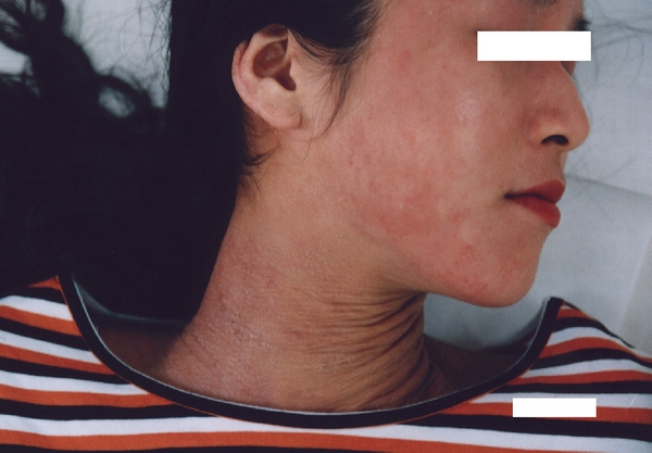 アトピーと喘息の体質改善整体のアトピー性皮膚炎改善前写真:川井筋系帯療法治療センターは、東京渋谷・横浜・船橋・大宮・名古屋・札幌にあります。
