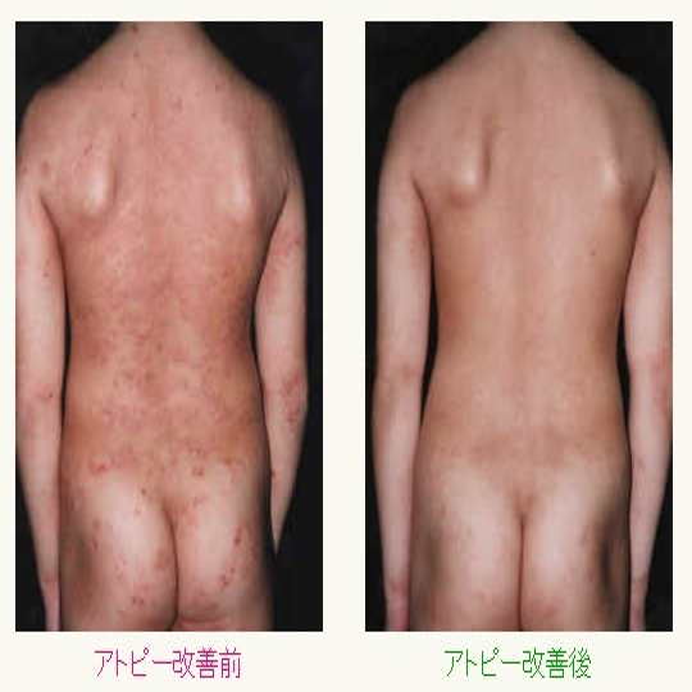 :アトピーと喘息の体質改善整体のアトピー性皮膚炎改善写真:川井筋系帯療法治療センターは、東京渋谷・横浜・船橋・大宮・名古屋・札幌にあります。