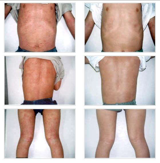 アトピーと喘息の体質改善整体のアトピー性皮膚炎改善写真:川井筋系帯療法治療センター:東京渋谷・横浜・船橋・大宮・名古屋・札幌にあります。