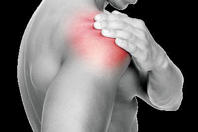 Schultererkrankungen - Orthopädische Privatarztpraxis Dr. med. Frank Brons