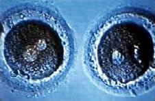 Zwei befruchtete Eizellen mit jeweils zwei Pronuclei