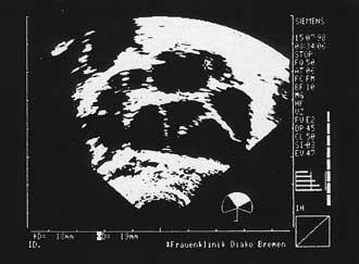 Ovarielle Stimulation. Der Leitfollikel mißt 18,5mm.