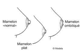 mamelons ombiliqués