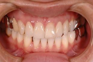 奥歯の銀歯