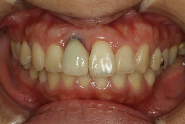 前歯のインプラントの歯茎が下がった