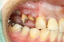歯茎を下げた状態