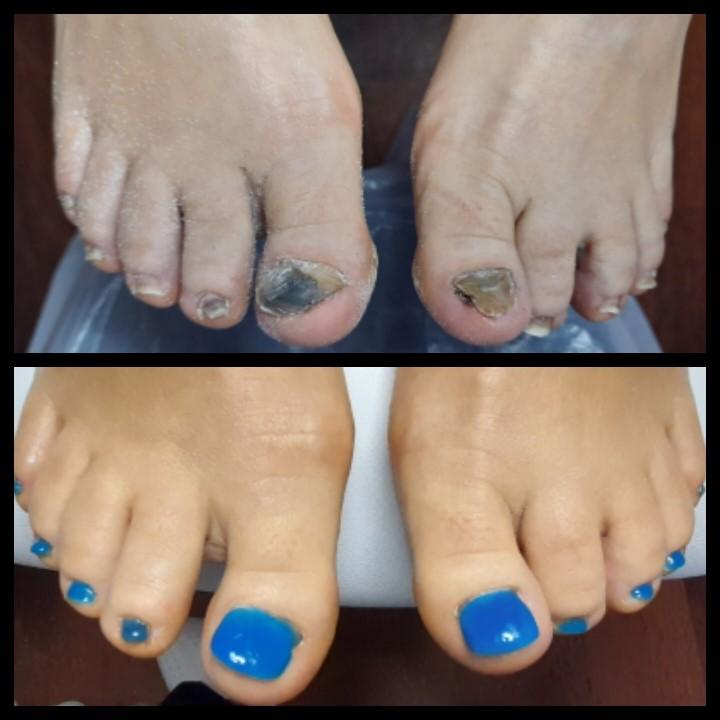 Künstliche Fußnagelplatte bei Nagel  Deformation
