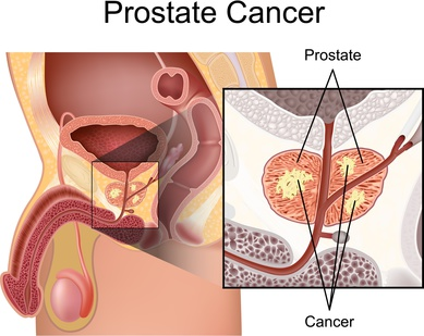 Prostatakrebs, Ursachen des Prostatakrebses