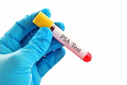 Prostatastpezifischer Antigen, Krebsmarker, Prostatakrebs Früherkennung, Krebsvorsorge.
