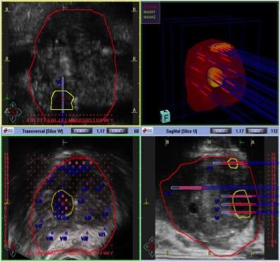 MRT-Kernspinn gesteuerte Prostatastanzbiopsie, Probeentnahme aus der Prostata bei Verdacht auf Prostatakrebs.