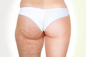 dehnen gegen cellulite