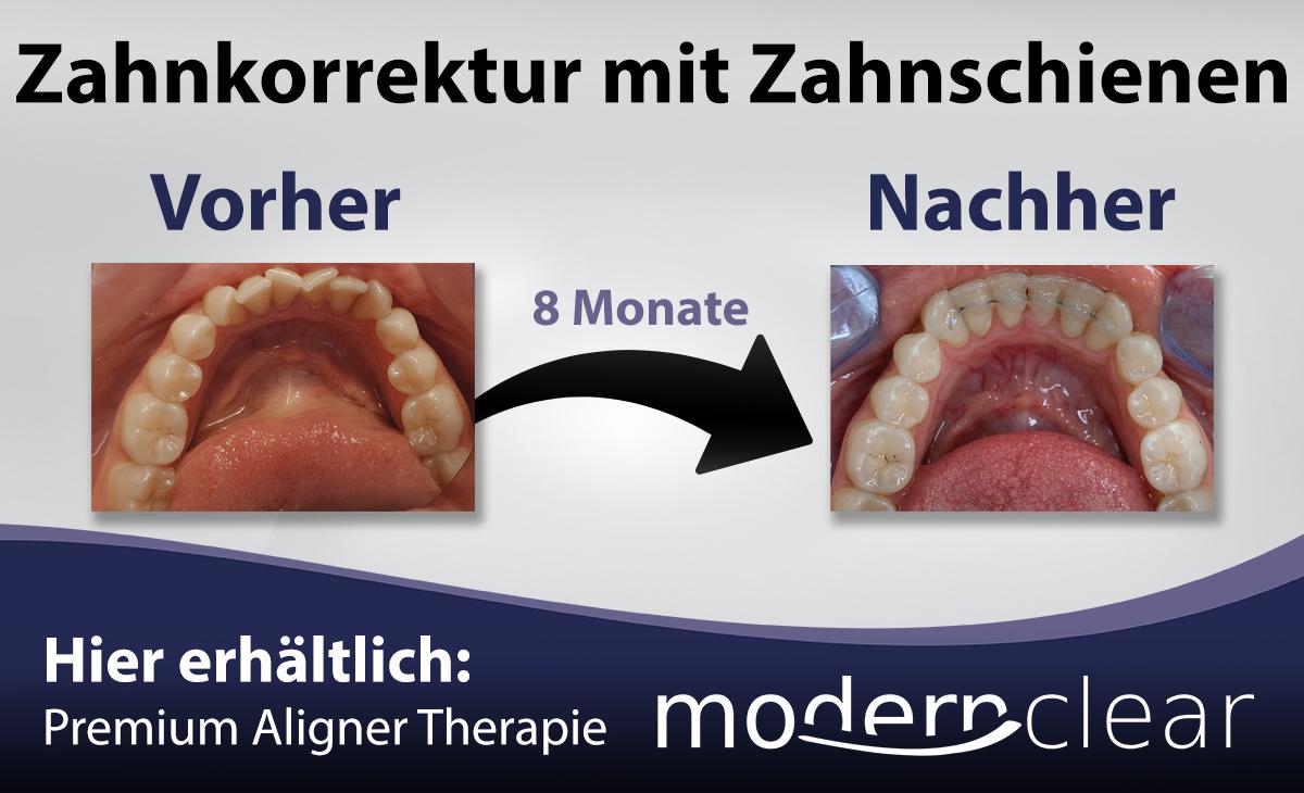 Zahnkorrektur mit unsichtbaren Schienen