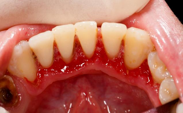 Zahnfleischbehandlung hilft gegen den Mundgeruch ( © Lighthunter - Depositphotos )