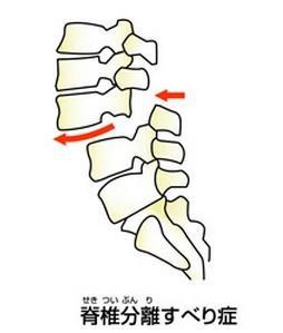 脊椎分離すべり症