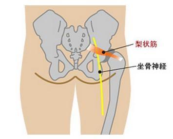 梨状筋 坐骨神経