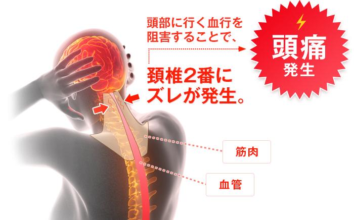頚椎2番にズレが発生すると頭痛が起こります。