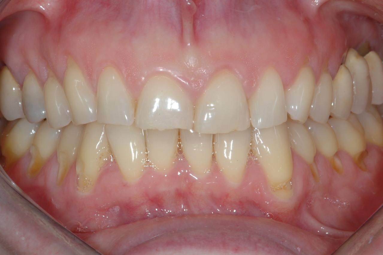 Forte usura dei denti con problemi masticatori ed estetici