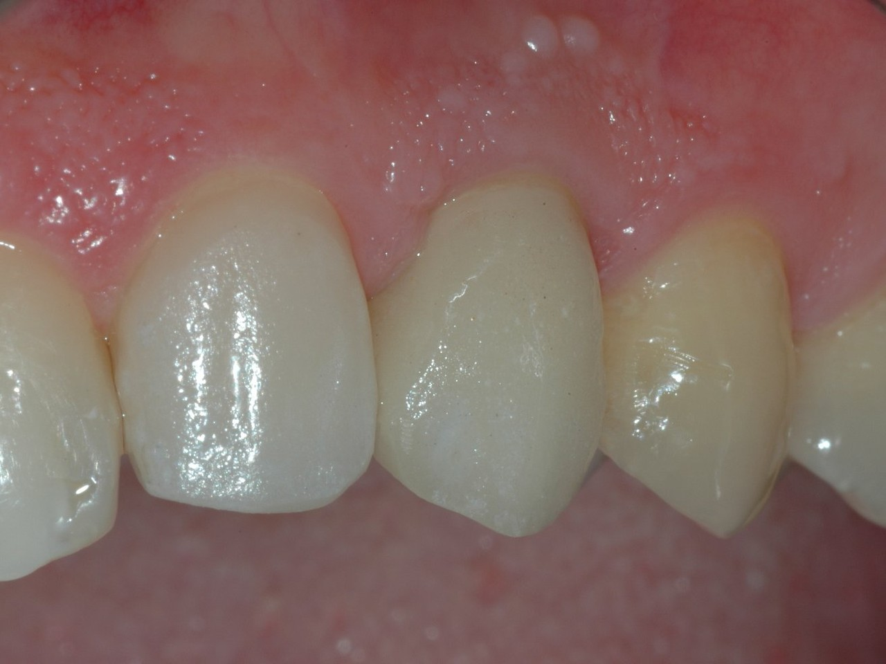 La realizzazione di una faccetta sul dente davanti per armonizzare il sorriso