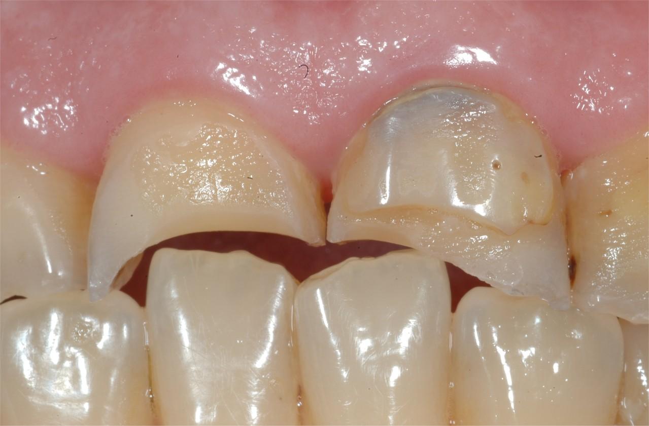 Denti rovinati da usura e fratture