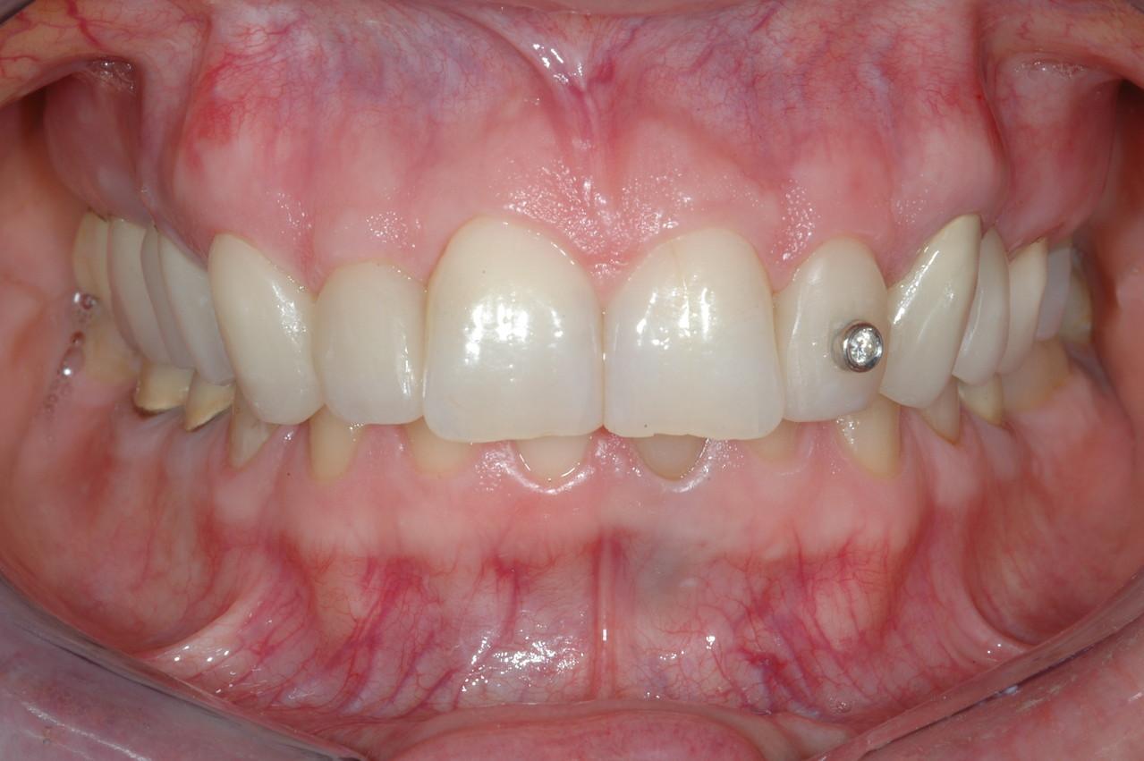 Morso profondo, usura dei denti e problemi articolari