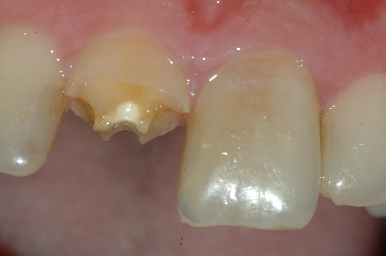 Incisivo centrale destro fratturato e sinistro scurito da vecchia devitalizzazione