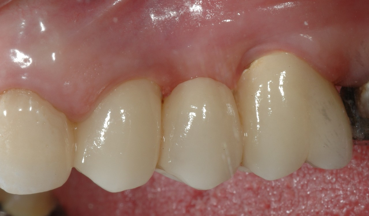 .....ed i denti in ceramica definitivi