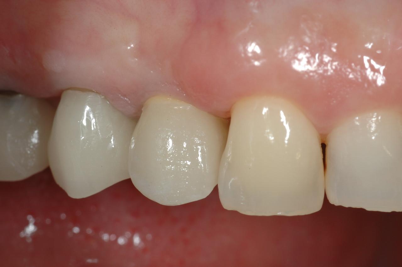 I denti definitivi in ceramica