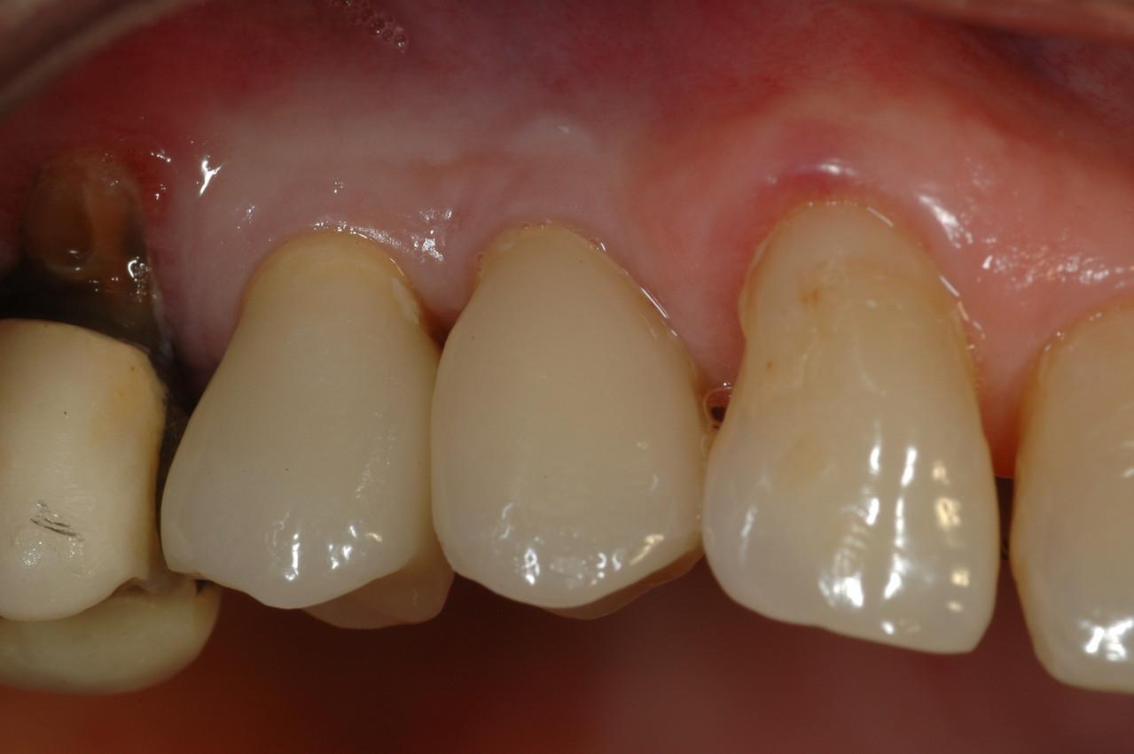Realizzazione di due denti singoli in ceramica su impianti osteointegrati