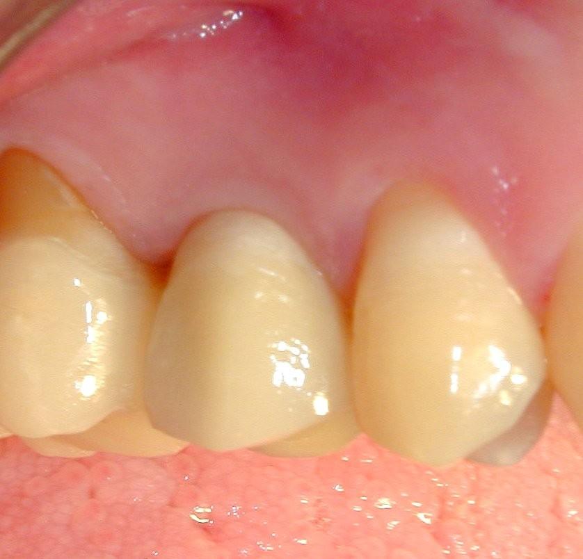 Dente in ceramica su impianto osteointegrato