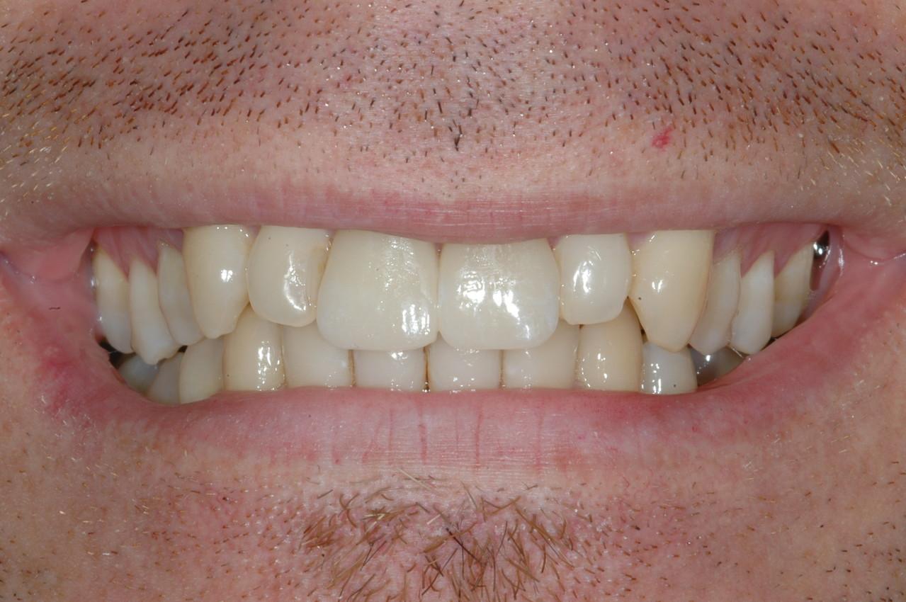 Il perfetto adattamento coi denti naturali