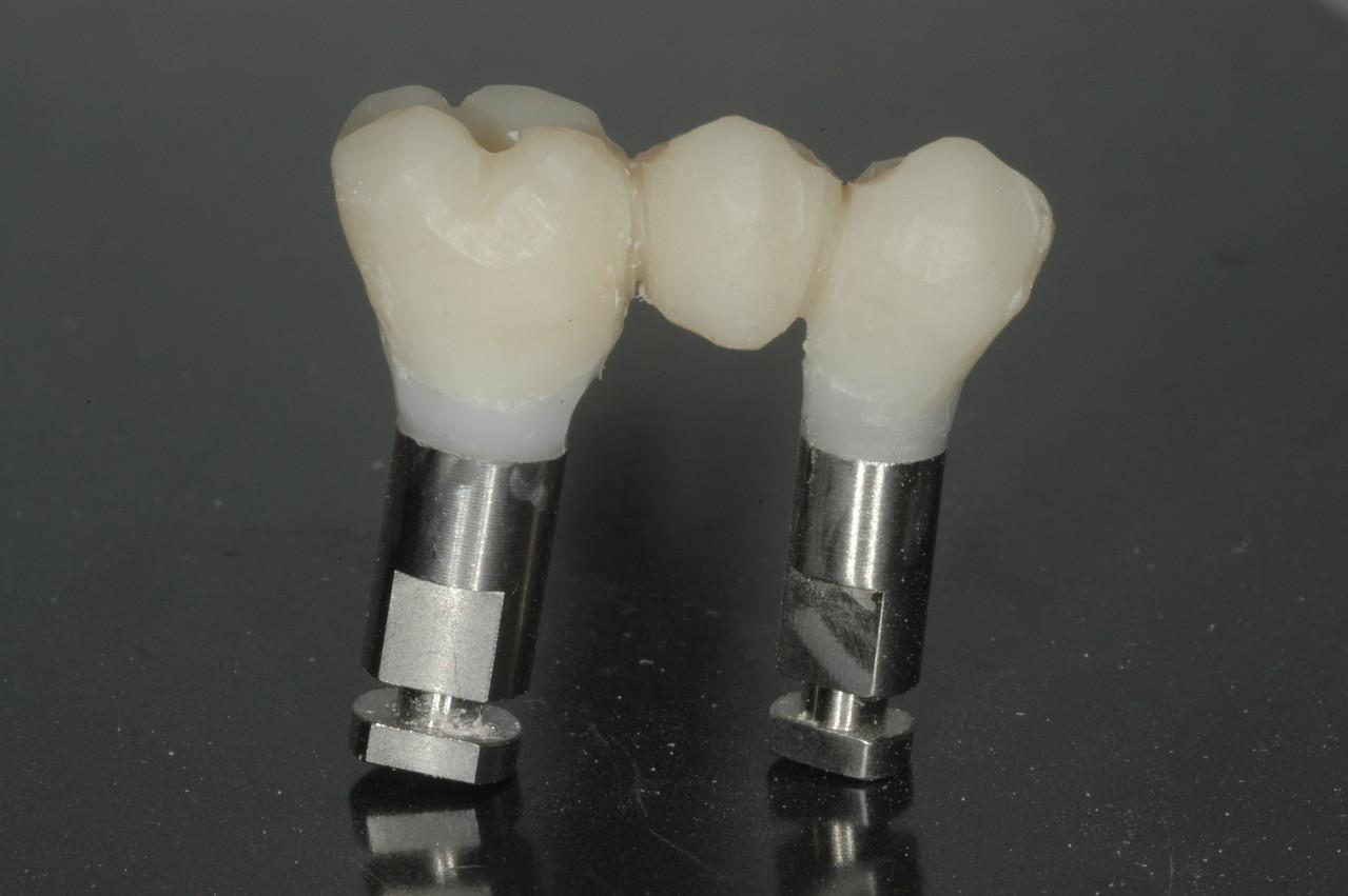 Nel posto delle radici ho inserito due impianti e ho eseguito un provvisorio immediato: il paziente va via coi suoi denti fissi in giornata