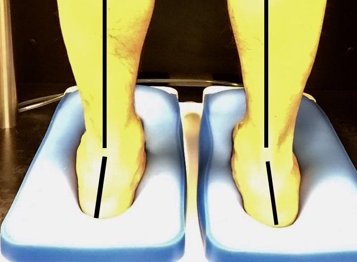 悪い足の状態で型取りをしても意味がありません。