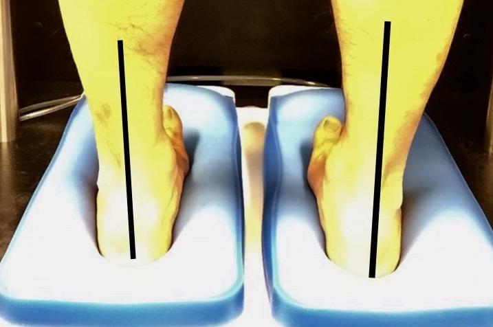 フットトレーナーズでは良い足型を再現します。