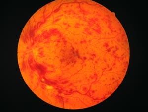 Zentralvenenthrombose
