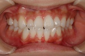 今年の4月の写真、犬歯に若干黄ばみが認められるが殆ど変化が無い