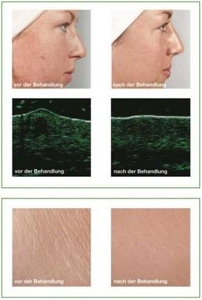 Vor und nach der Behandlung mit Green Peel ®