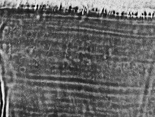 Bild Marcus Brückner Mannheim Forensik 1 Zähne