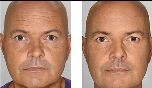 Mesoinjektion Gesicht Mann vorher nachher