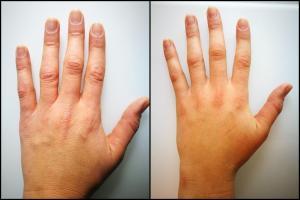 Hände BioRePeelCL3