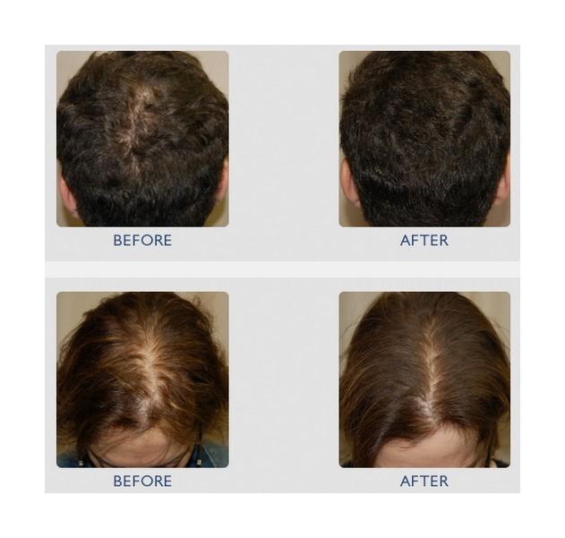 Besispiel Mesoinjektion vorher nachher Haare