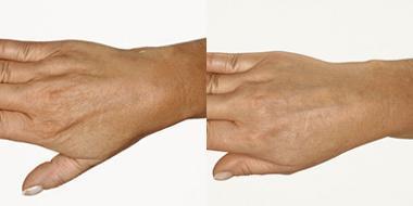 Mesoinjektion Hände vorher nachher