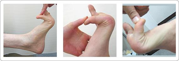 指上げ足(浮指)は親指が90度以上反ってしまいます