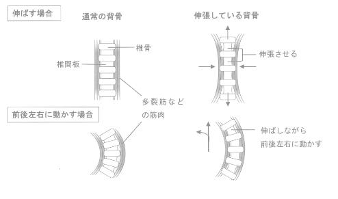 背骨の伸張(エロンゲーション)おイメージ